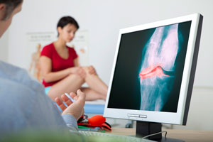 Rheumatology consultation being provided to patient by Rheumatologist in doctors office - computer screen displays and X-ray showing inflamed joints